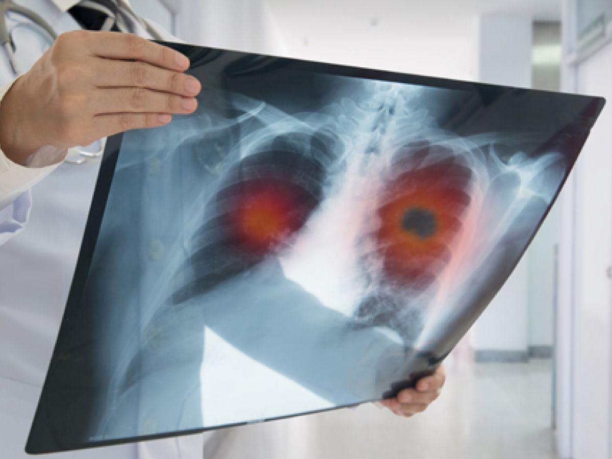 Fumar y cáncer de pulmón