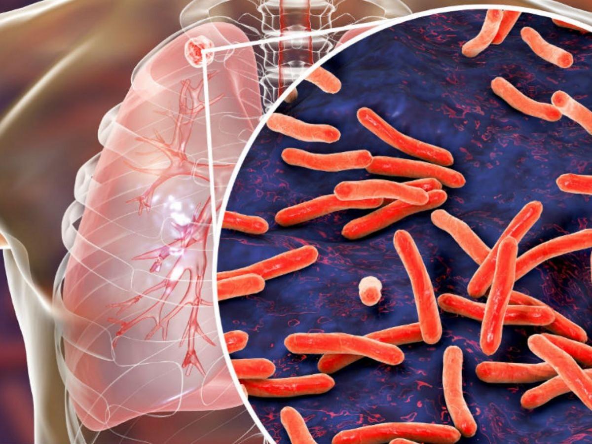 ¿Por qué es tan peligrosa la tuberculosis?