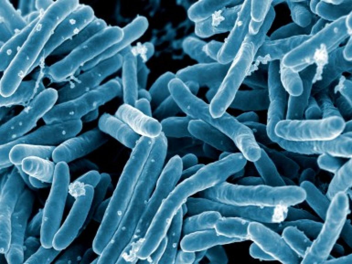 Revelan el mecanismo que hace que la tuberculosis sea tan peligrosa