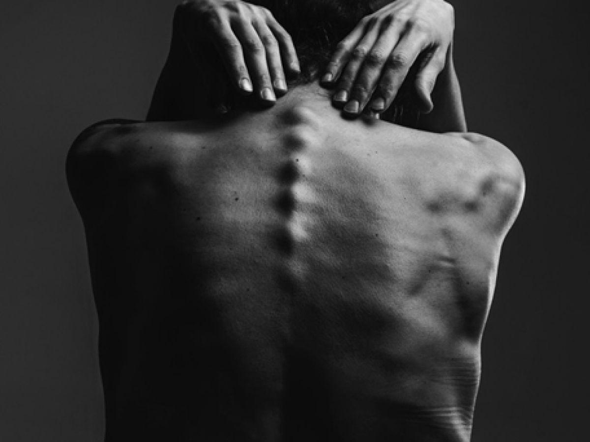 La anorexia puede empezar a gestarse desde el hogar, asegura experta