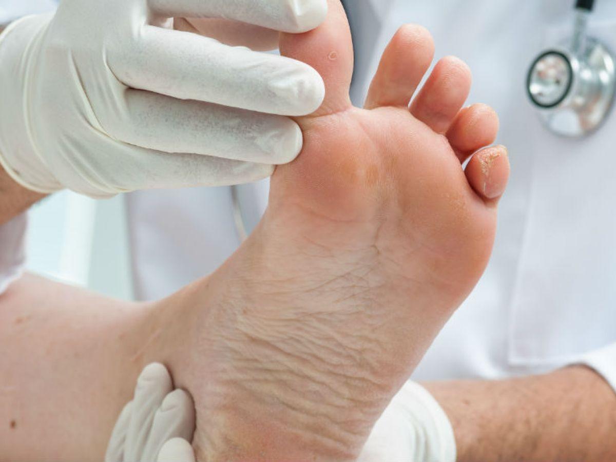 Flujo los pies a falta sangre de de