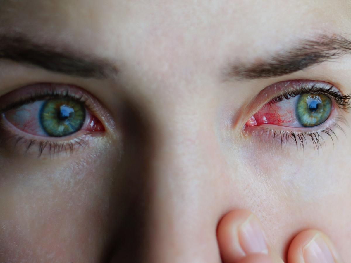 ¿Tienes los ojos rojos?