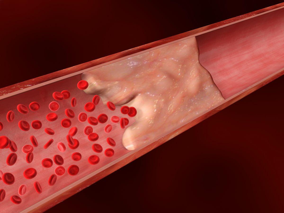 10 medidas para tratar el colesterol malo