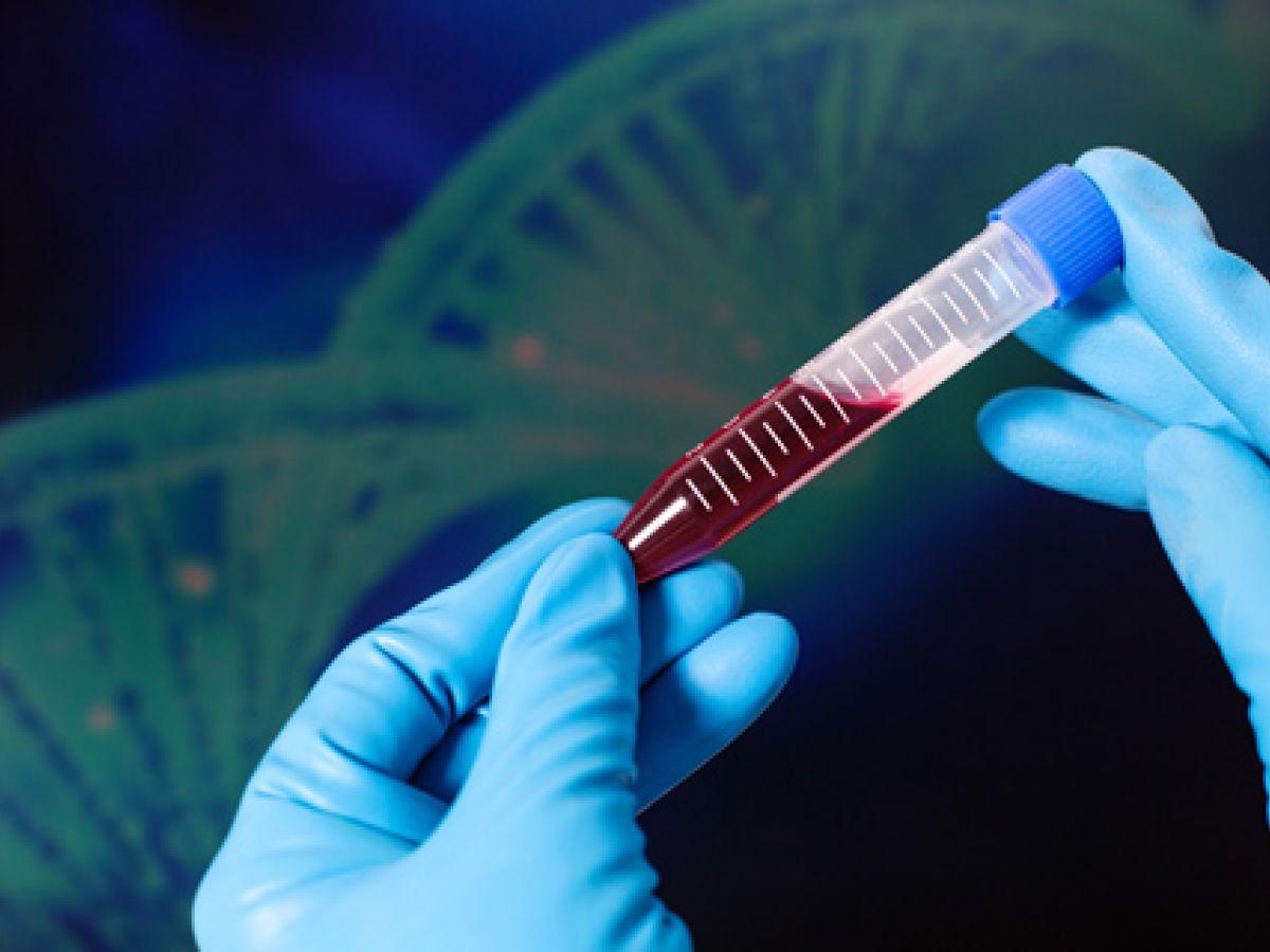 Mutaciones predicen el riesgo de leucemia mieloide años antes del diagnóstico