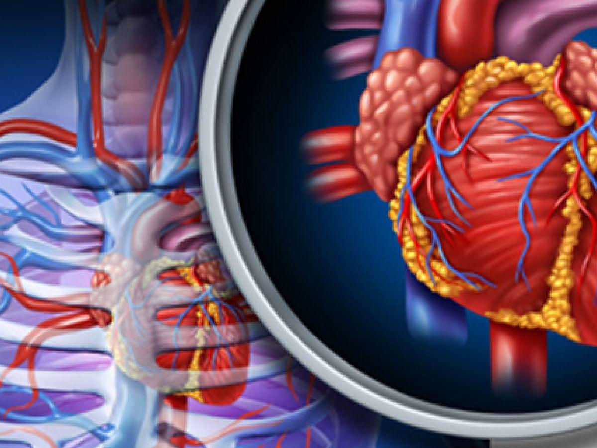 Los infartos son cada vez más frecuentes en personas jóvenes
