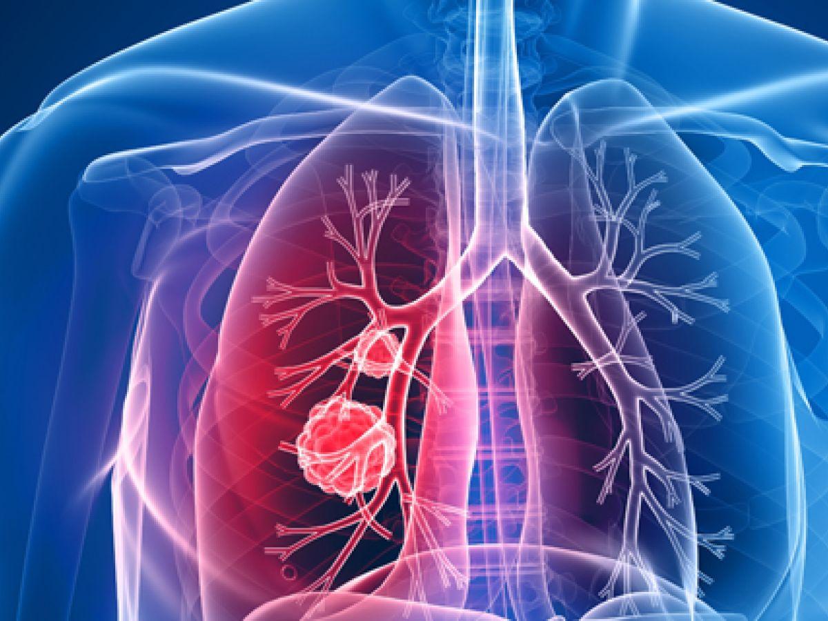 Mujer muere de cáncer tras recibir trasplante de pulmones de fumadora