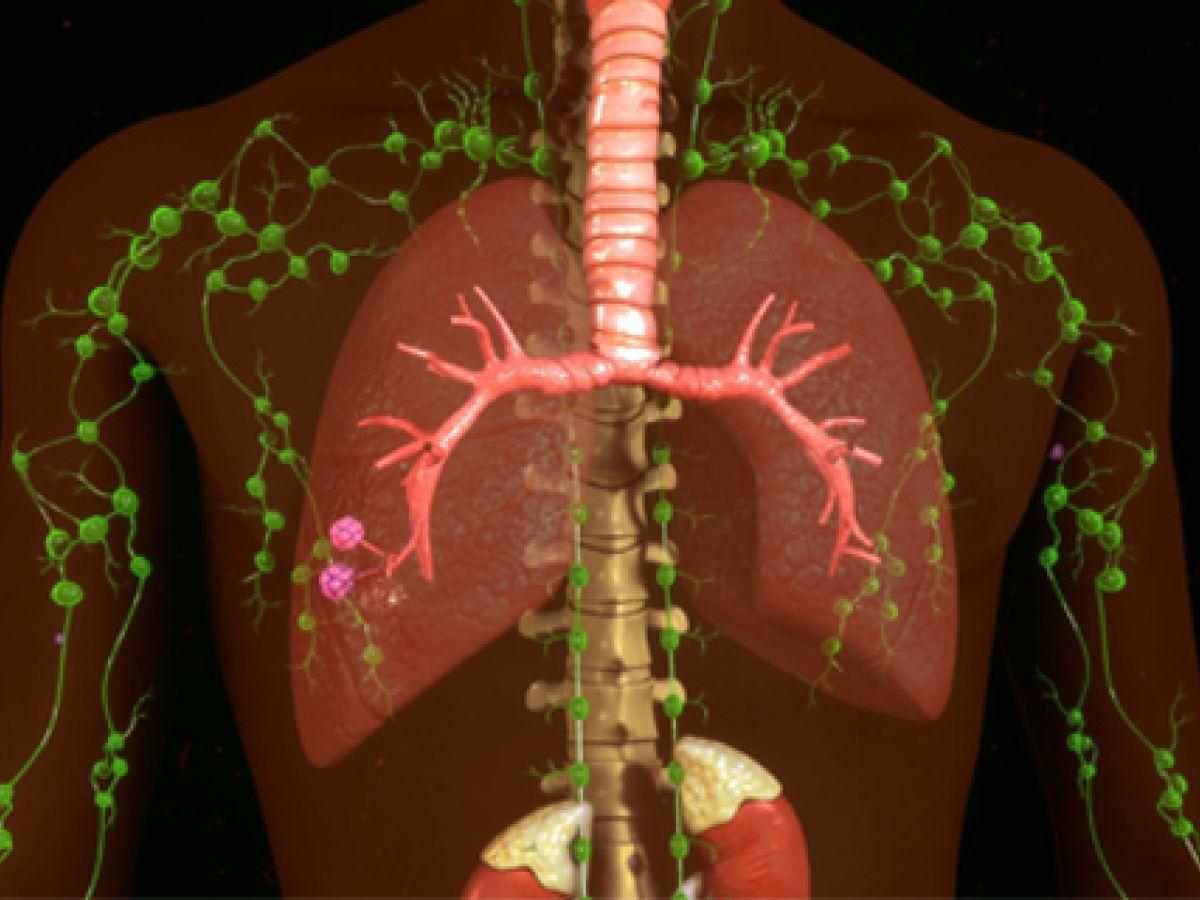 ¿Qué es el cáncer linfático?
