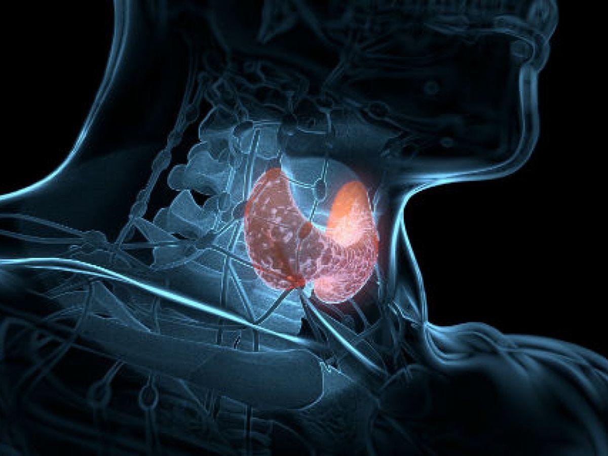 Alarmante la incidencia de trastornos tiroideos