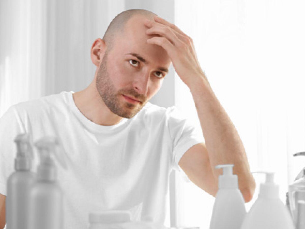Alopecia androgenética: cuando el pelo se va más temprano
