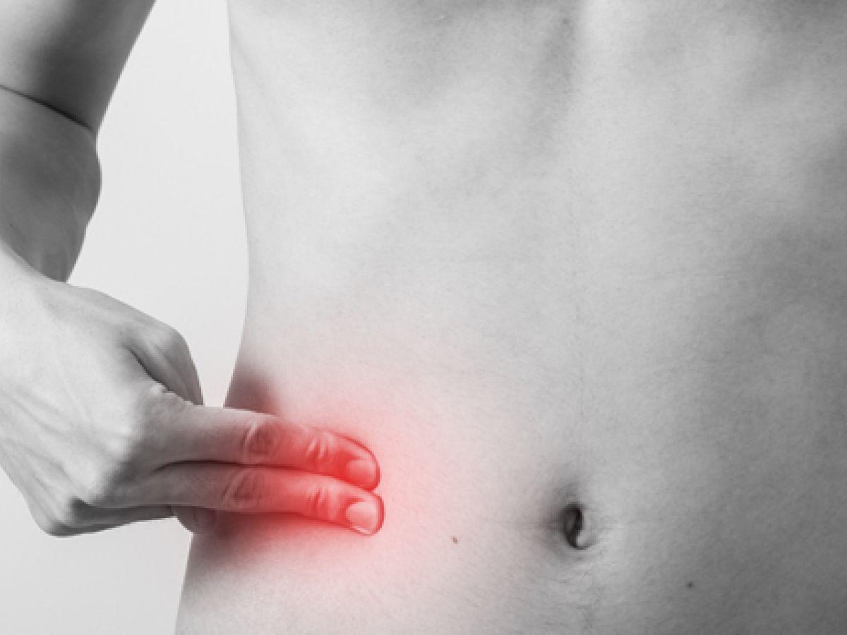 Apendicitis, un dolor que puede ser letal