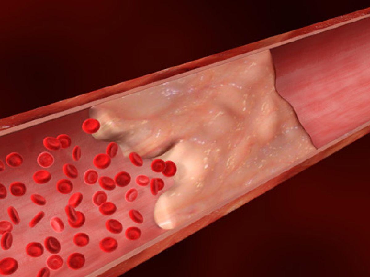 Un equipo de investigadores ha descubierto nuevos mecanismos de calcificación vascular