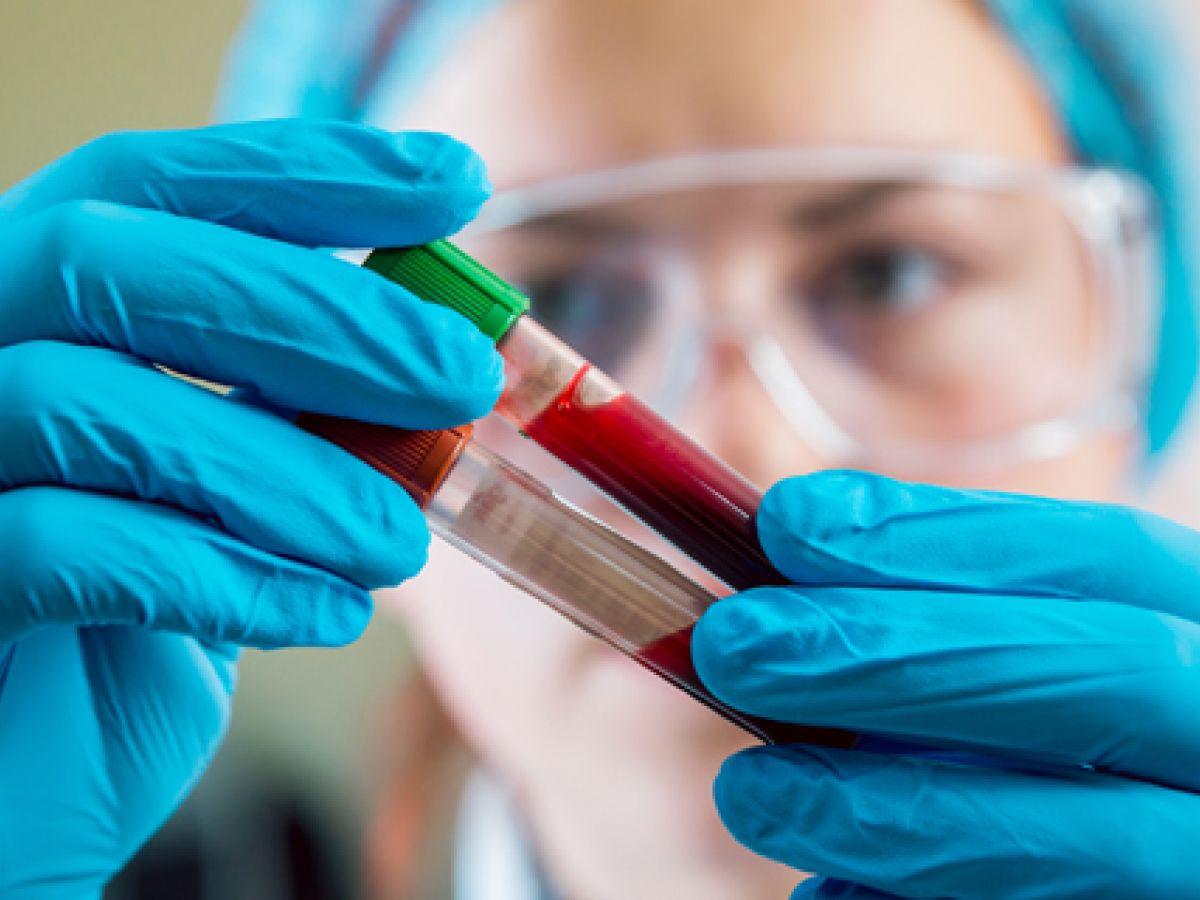 Pacientes que tienen precursor de cáncer sanguíneo corren riesgo de desarrollar cáncer incluso después de 30 años