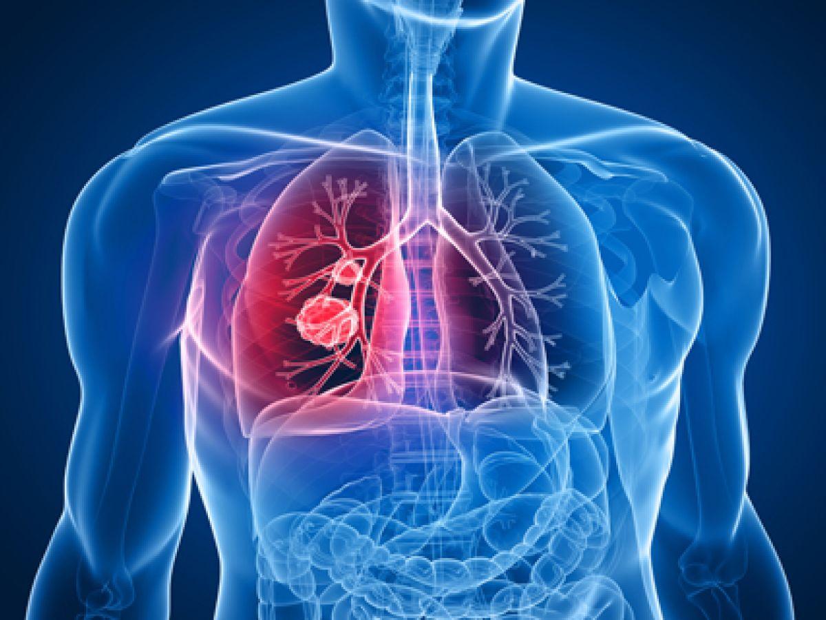 Un anticuerpo reduce a mitad riesgo de progresión o muerte en cáncer pulmón