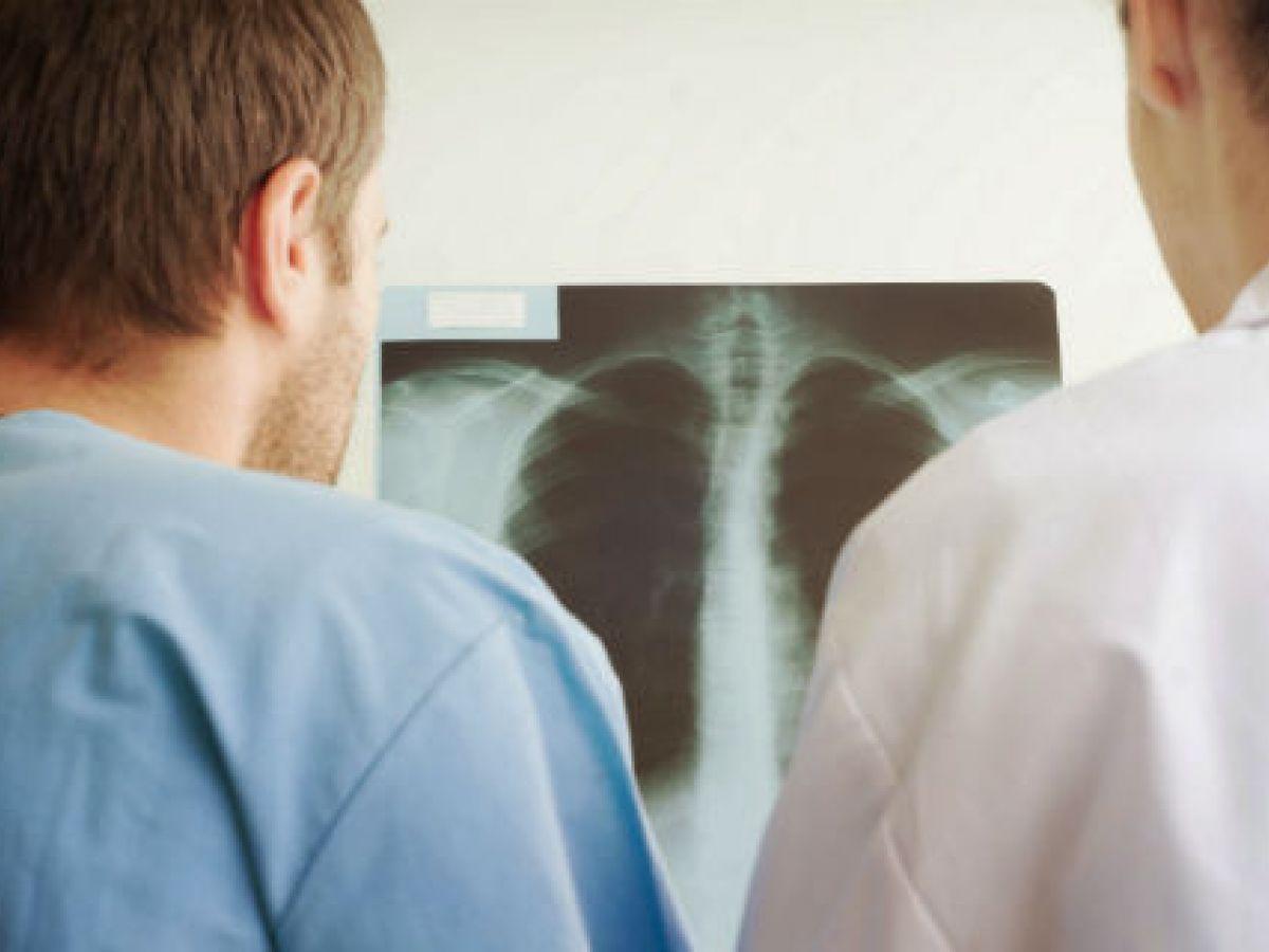 Los diagnósticos tempranos acorralan el cáncer
