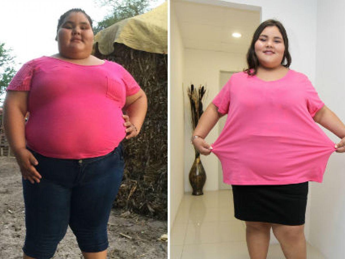 Adolescente más obesa del mundo baja casi 200 libras a semanas de cumplir sus 15 años