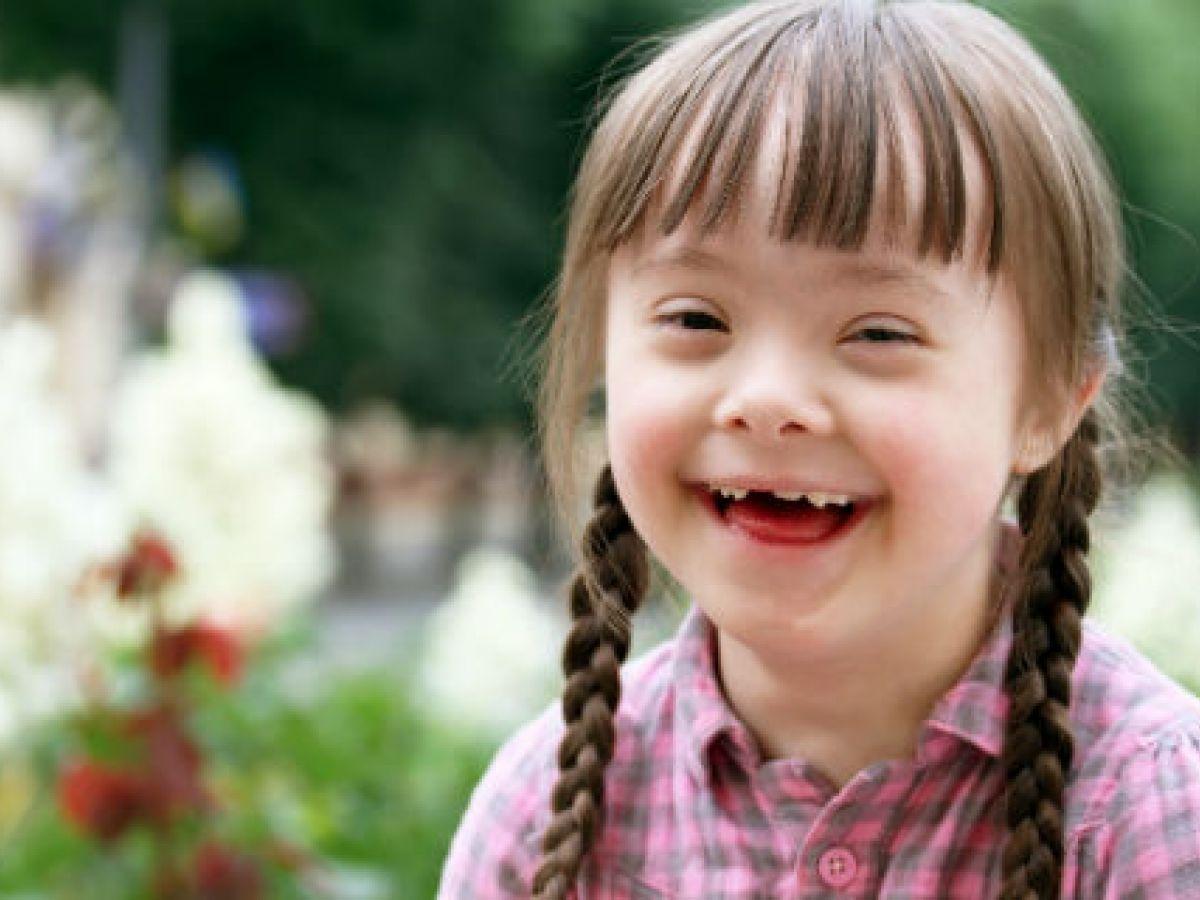 Un tratamiento adecuado del síndrome de Down garantiza buena calidad de vida