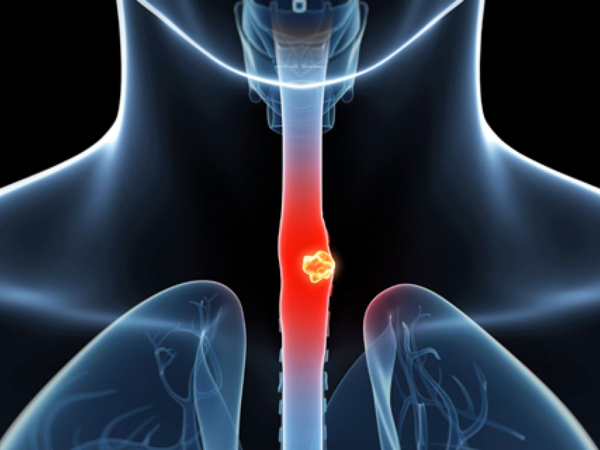 Lo que debes conocer sobre el cáncer de esófago