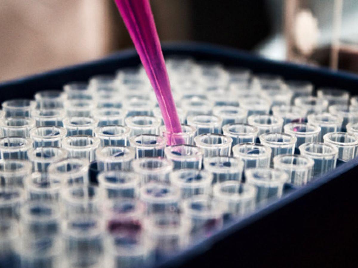 Identifican factor genético que aumenta riesgo de disfunción eréctil