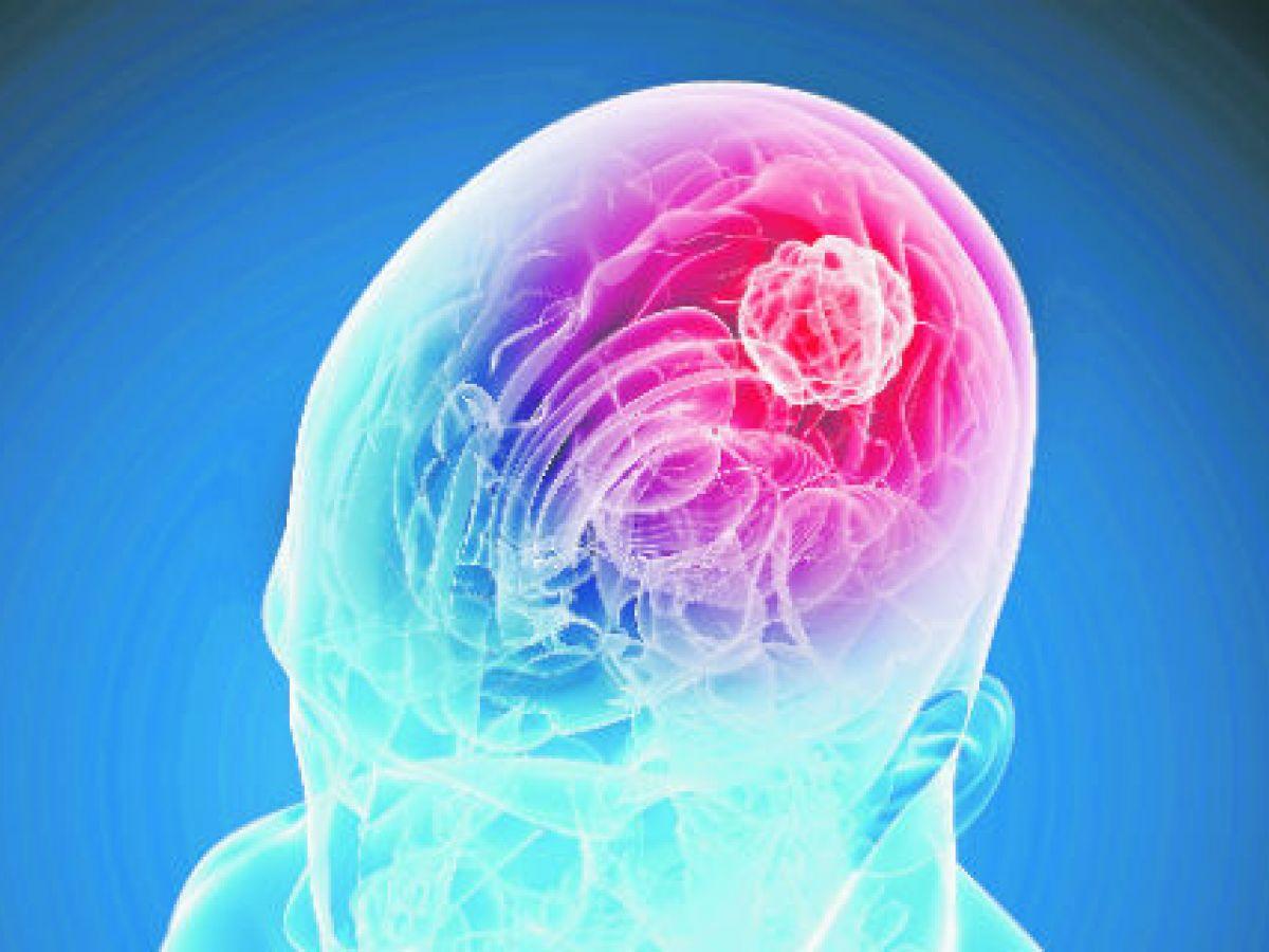 Conoce el glioblastoma, uno de los tumores del cerebro más malignos y letales