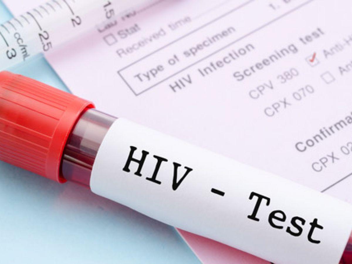 7 noticias sobre el VIH para seguir en los próximos años