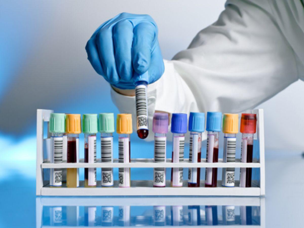 ¿Haces trampa con la dieta? Una prueba de sangre le daría pistas a tu nutricionista