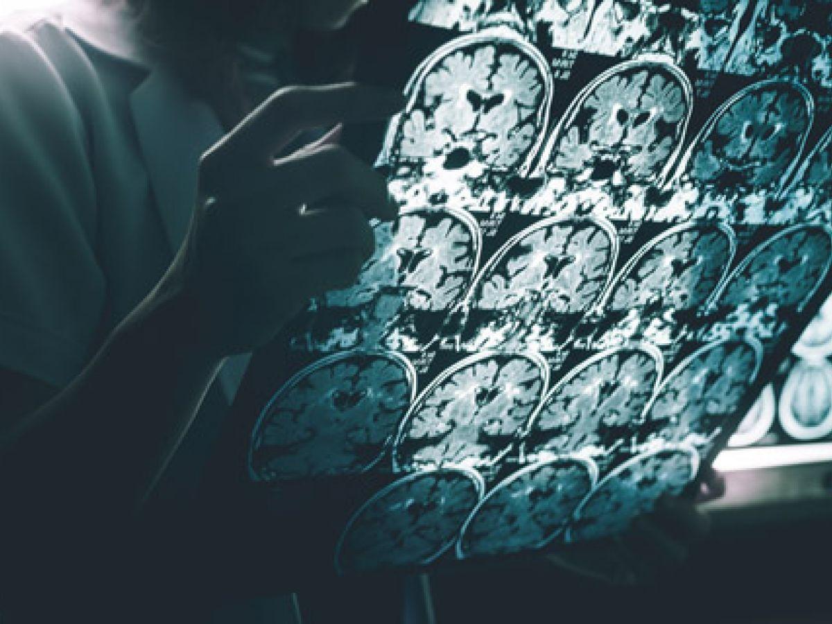 Nuevas guías para diagnosticar el alzhéimer promueven detección temprana