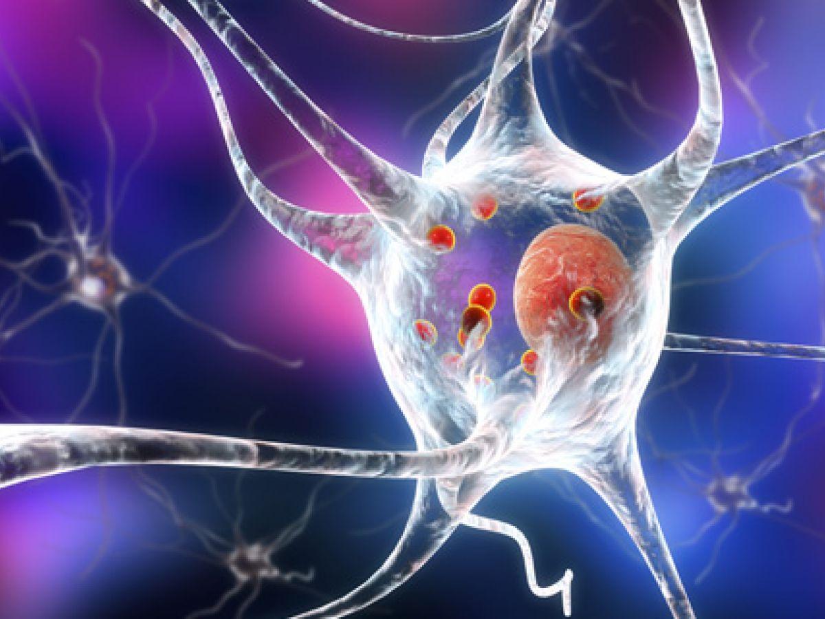 Un radiofármaco ayuda a diagnosticar y tratar oportunamente el párkinson