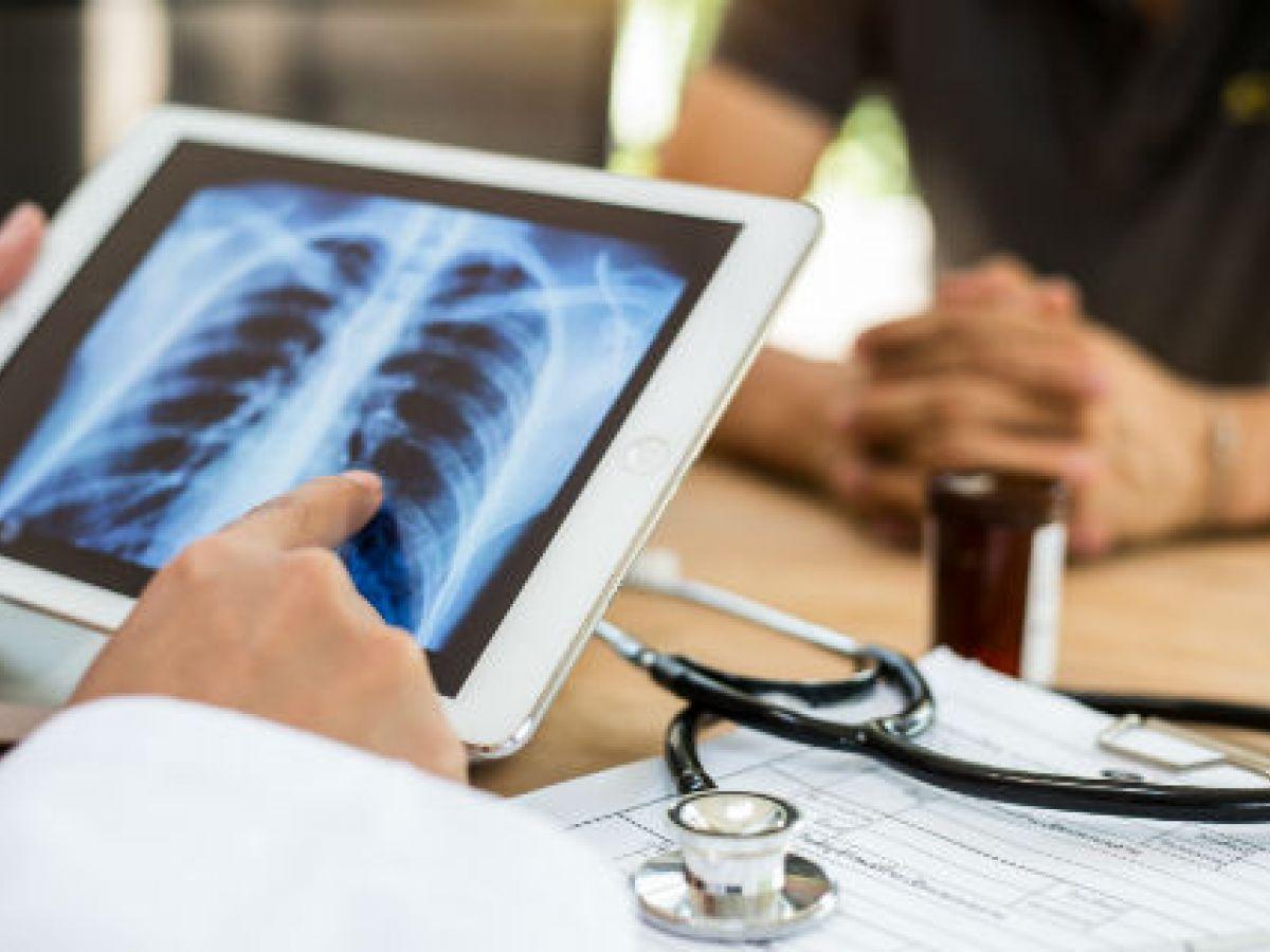 Cáncer de pulmón: continúan mejorando los tratamientos