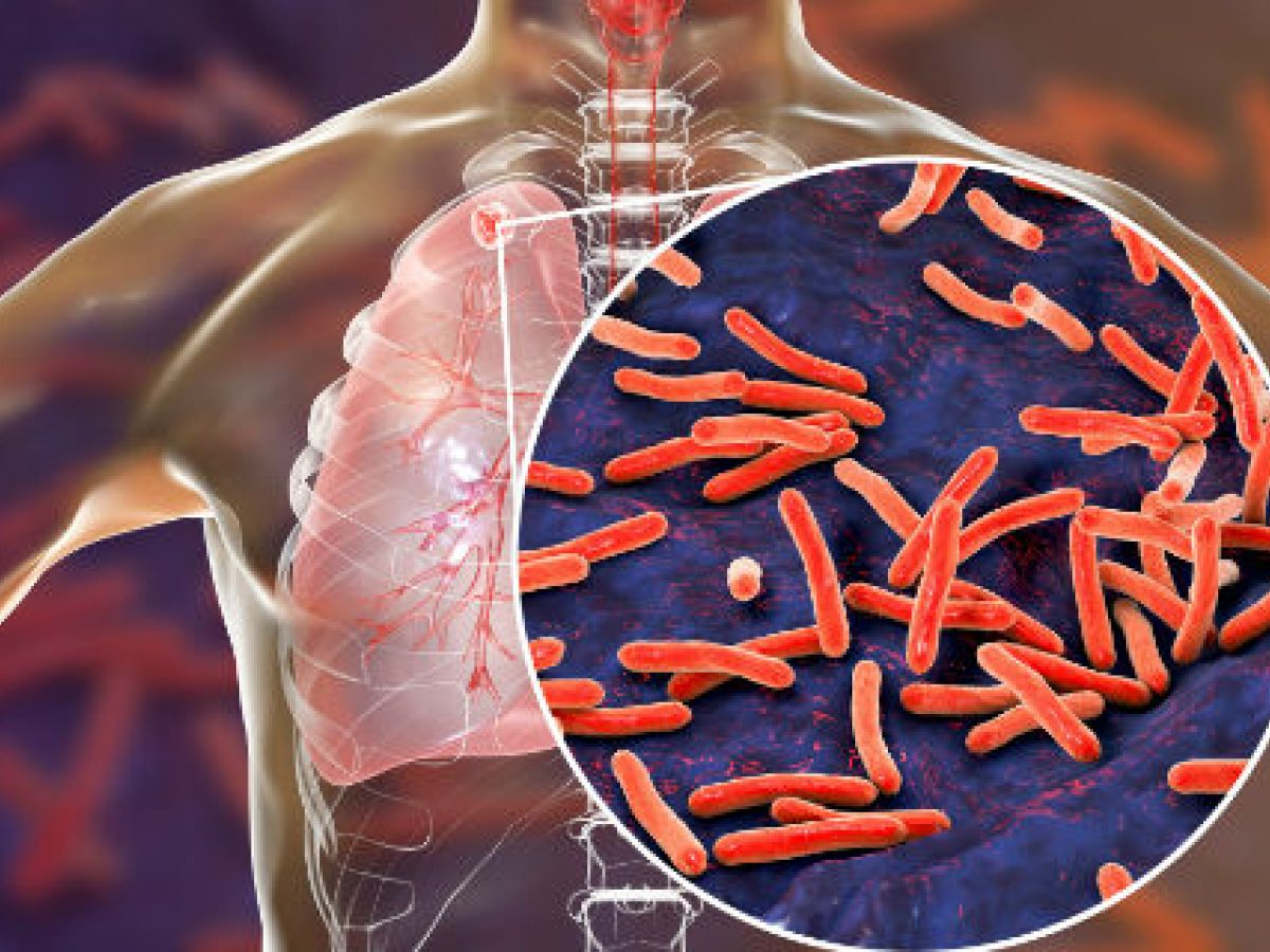 La tuberculosis puede curarse con tratamientos más cortos, según estudio