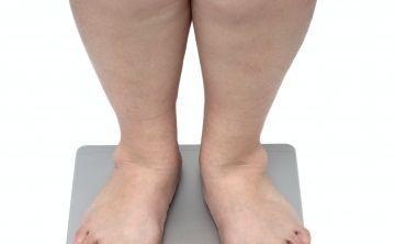 Vinculada la obesidad a 12 cánceres