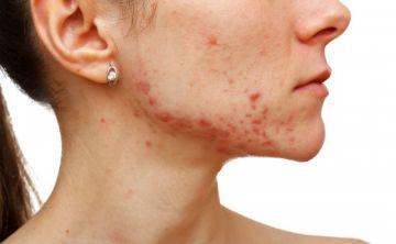 Solución al acné con severos efectos secundarios