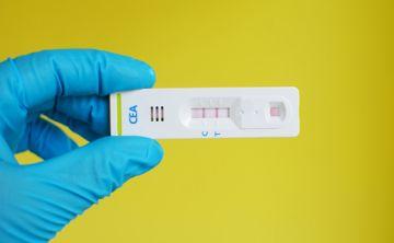 Un simple examen puede mejorar el tratamiento contra el cáncer de colon