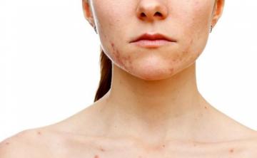 Tipos de granos que distinguen los dermatólogos