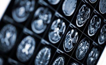 Todo lo que hay que saber sobre la esclerosis múltiple
