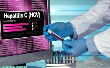 Un equipo de investigadores simplifica el diagnóstico de la hepatitis C