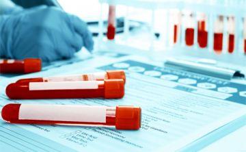 Clave hacerse la prueba que detecta la hepatitis C