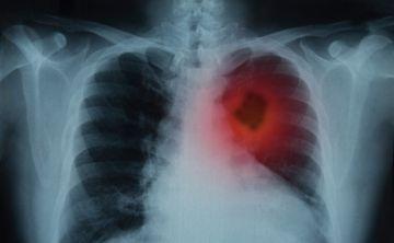 Un tratamiento contra el cáncer de pulmón reduce el riesgo de muerte un 51%