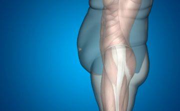 Combinación de trasplante hepático y cirugía para reducción de peso beneficia a a pacientes obesos