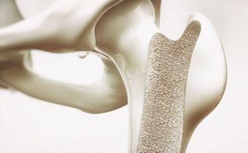 Identifican conexión entre células relacionadas con el envejecimiento y la pérdida ósea