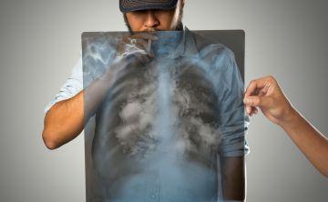 Evoluciona el tratamiento de cáncer de pulmón