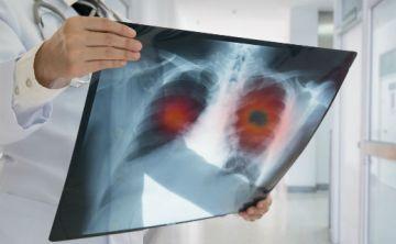 Descubren el motivo por el que la inmunoterapia es eficaz en algunos tipos de cáncer de pulmón