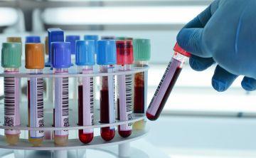 Un análisis de sangre podría mejorar la detección precoz del cáncer de pulmón