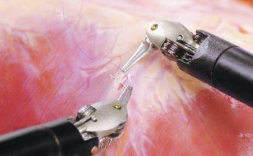 10 ventajas de la cirugía robótica