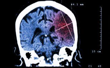 Alertan sobre el creciente impacto de la discapacidad por infarto cerebral