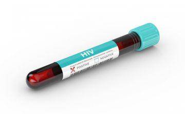 El 27 de junio, hazte la prueba del VIH