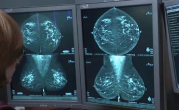¿Mejora la mamografía 3D la detección de cáncer?